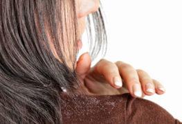 Женщина стряхивает перхоть с плеча