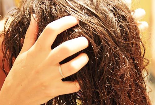 Процедура скрабирования кожи головы