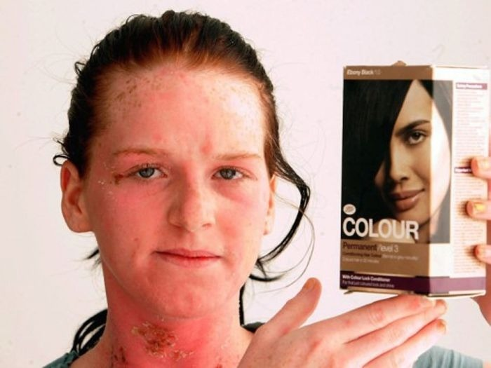 Аллергия на краску для волос: причины, симптомы, методы лечения