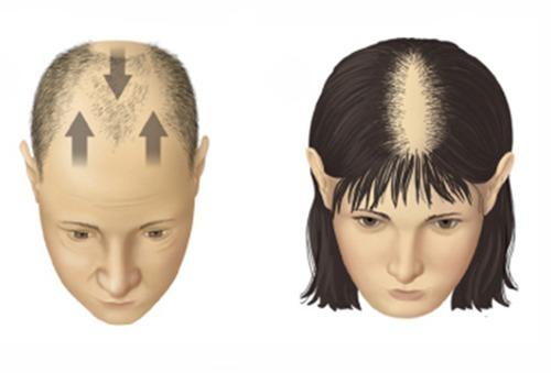 Лечение волос облысения