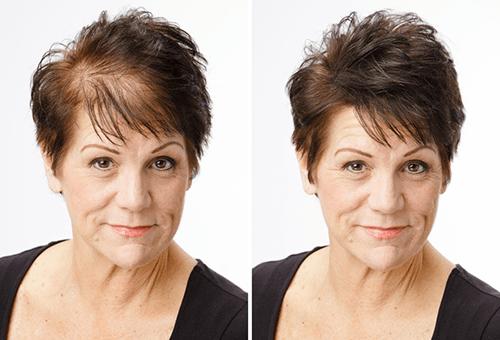 Лечение женского облысение - до и после