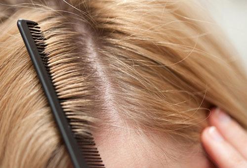 Волосы без перхати
