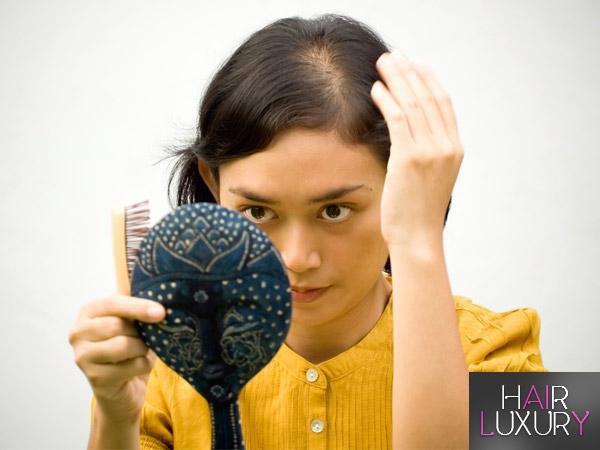 Облысение у женщин: причины и лечение