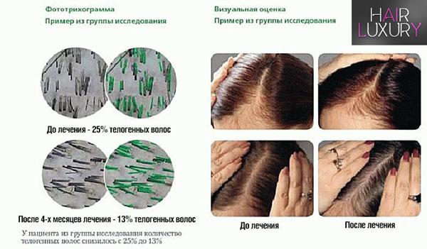 Витамины для волос Пантовигар: инструкция по применению
